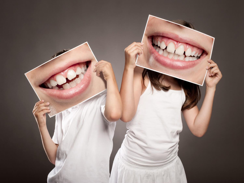 Zähne was tun schwarze Schwarze Zähne